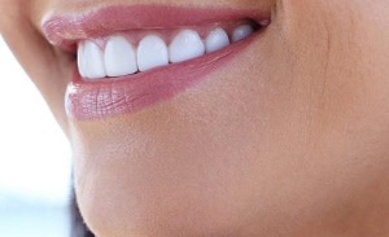خط لبخندتان را رایگان از بین ببرید