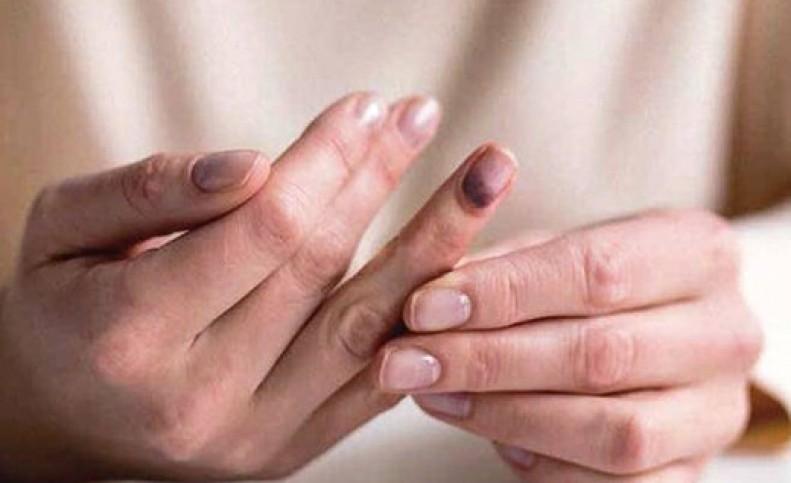 بیحسی و گزگز بدن برای چیست؟/ علت ۵ کمبود در بدن را بشناسید
