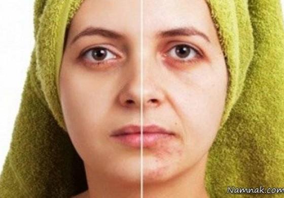 تیره ترین لک صورت را با آب پیاز درمان کنید + ماسک
